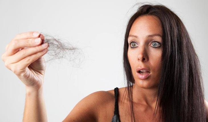 От псориаза головы сильно выпадают волосы