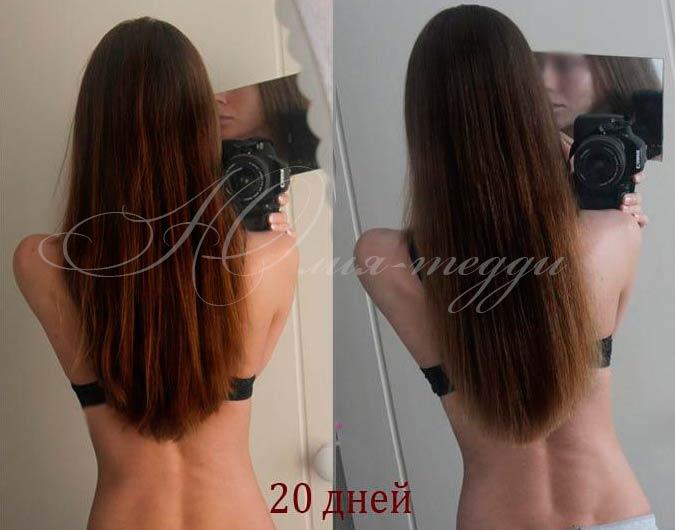 Никотиновая кислота для волос до и после фото