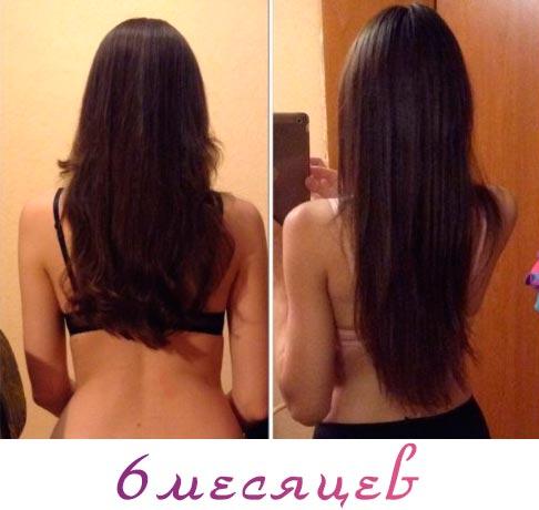 волосы после никотиновой кислоты фото до и после